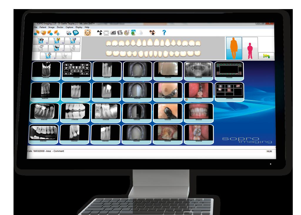 logiciel-sopro-imaging-marseille